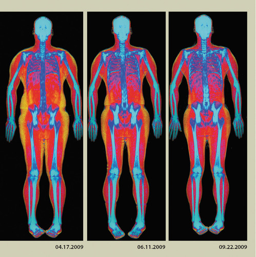 HOLOGIC, INC. ADVANCED BODY COMPOSITION FEATURE